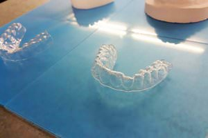 Життя Американський студент вирівняв собі зуби за допомогою 3D-принтера новина сша у світі