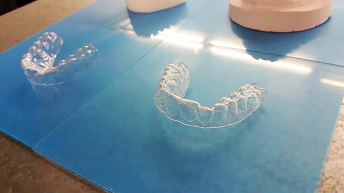 Американський студент вирівняв собі зуби за допомогою 3D-принтера
