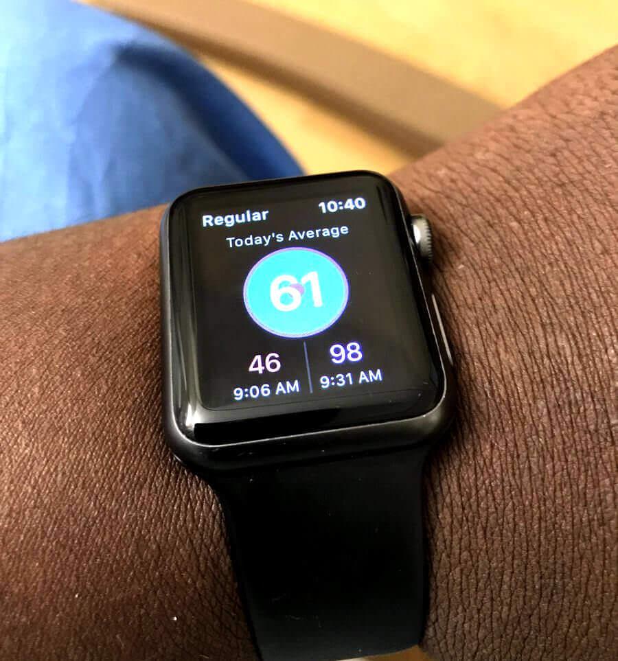 Розумний годинник Apple Watch діагностував захворювання і врятував життя своєму власнику