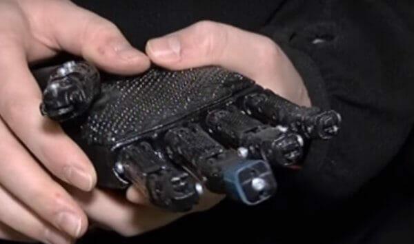 У Сумах створили інтелектуальний біонічний протез вартістю всього 15 тис. грн