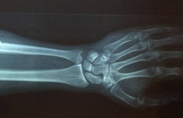 Штучний інтелект допоможе лікарям виявляти переломи зап'ястя