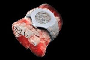 Технології У Новій Зеландії створили рентген, який робить кольорові тривимірні зображення медицина нова зеландія новина у світі