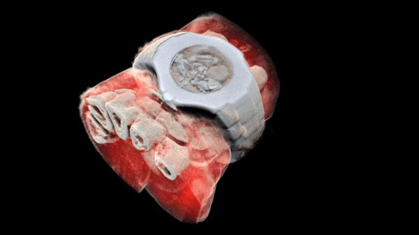 У Новій Зеландії створили рентген, який робить кольорові тривимірні зображення