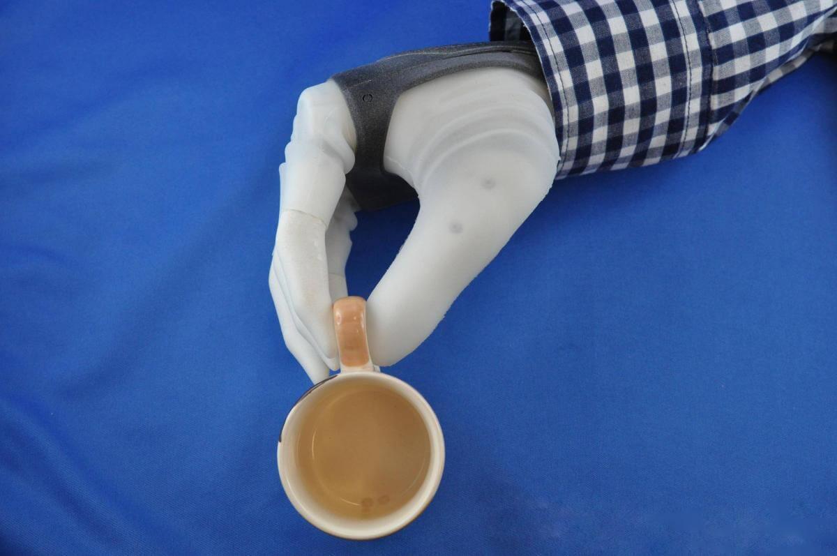 Вченим вперше вдалось під'єднати протез руки до нервів пацієнтки