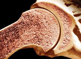 Життя Винайшли дієвий спосіб лікування раку кісткового мозку кнр медицина наука новина у світі