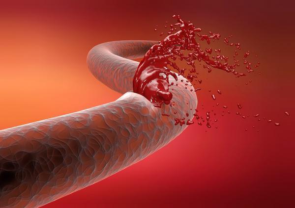 У Китаї створили біоклей, який зупиняє кровотечу будь-якої складності
