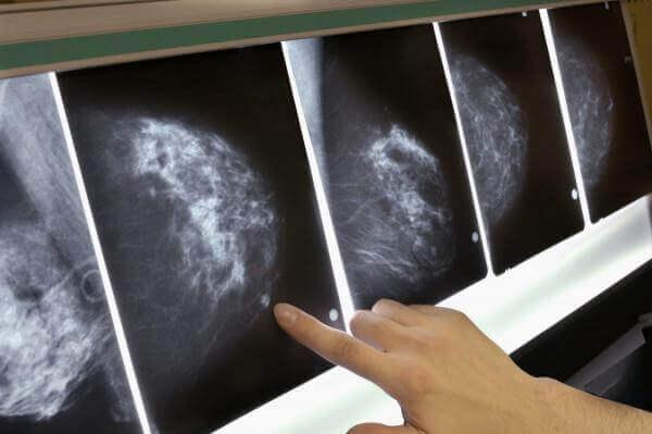 Штучний інтелект виявляє рак молочної залози за 5 років до його виникнення