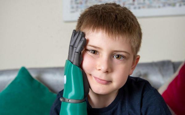 8-літньому хлопчику з Британії на день народження подарували біонічну руку