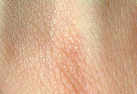 Людині вперше пересадили генетично модифіковану шкіру свині