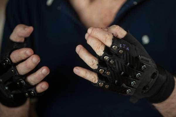 Біонічні рукавички допомогли хворому музикантові знову грати