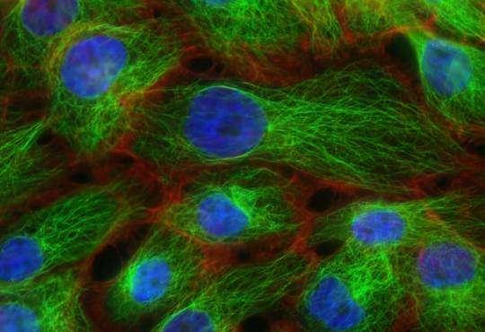 Життя Клітини-егоїсти: історія та принципи лікування раку біологія медицина стаття
