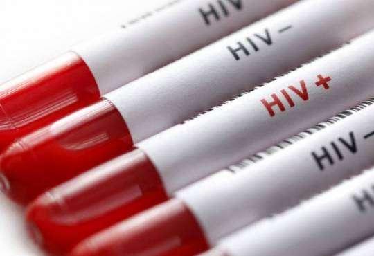 Життя Застосування певних препаратів зменшить поширення ВІЛ в Україні здоров'я новина сша україна