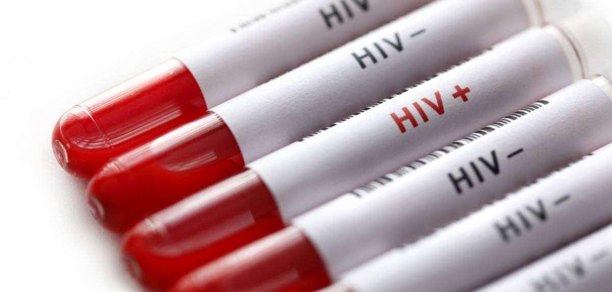 Застосування певних препаратів зменшить поширення ВІЛ в Україні