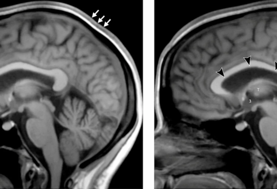 Життя Тривале перебування людини в космосі може викликати деменцію в майбутньому здоров'я космос медицина новина