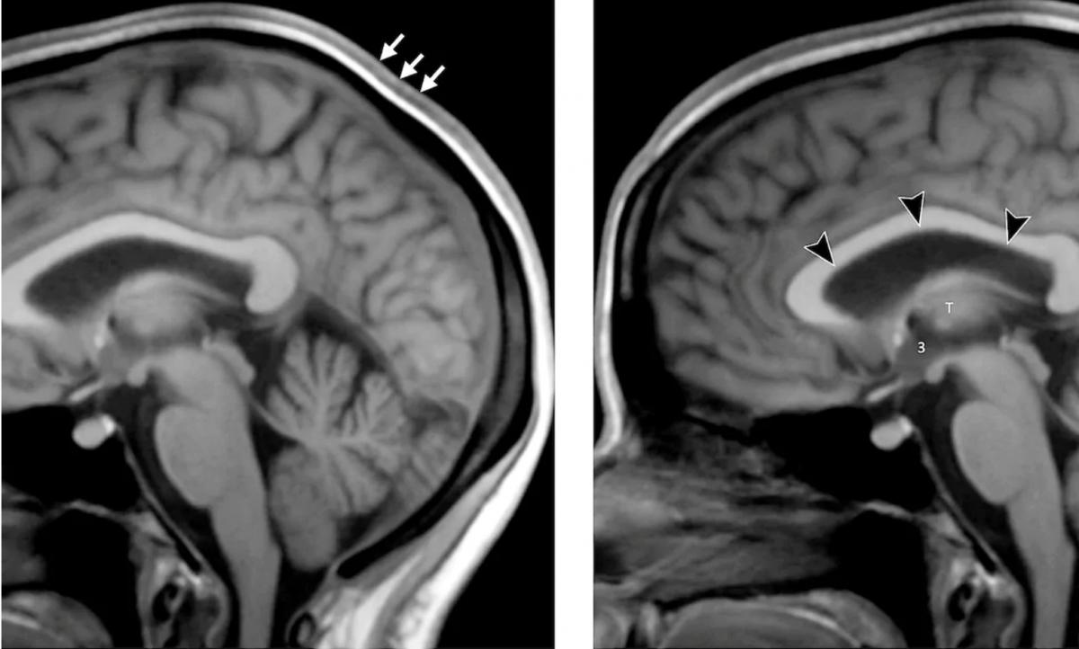 Тривале перебування людини в космосі може викликати деменцію в майбутньому