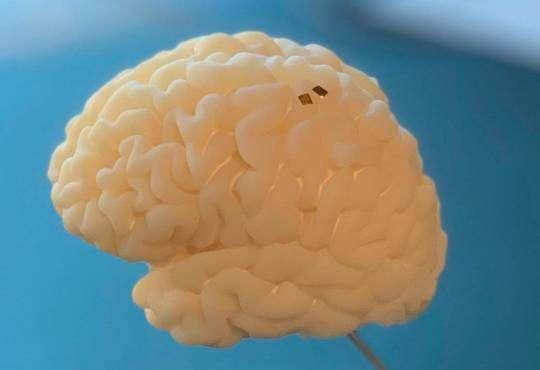Життя Мозок зможе керувати електронними протезами безпека здоров'я інклюзія стаття