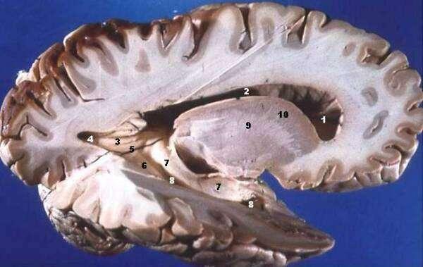 Права частина головного мозку з сірою (темніші зовнішні частини) і білою (внутрішні світліші області) речовинами.