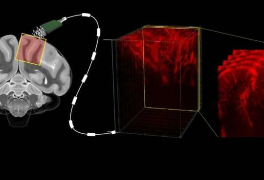 Технології Як нейрокомп'ютер, що читає думки, зможе повернути до нормального життя паралізованих людей здоров'я роботи технології