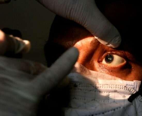 Життя Спалах мукоміркозу в Індії – чорний грибок, який забирає зір і життя здоров'я індія коронавірус медицина