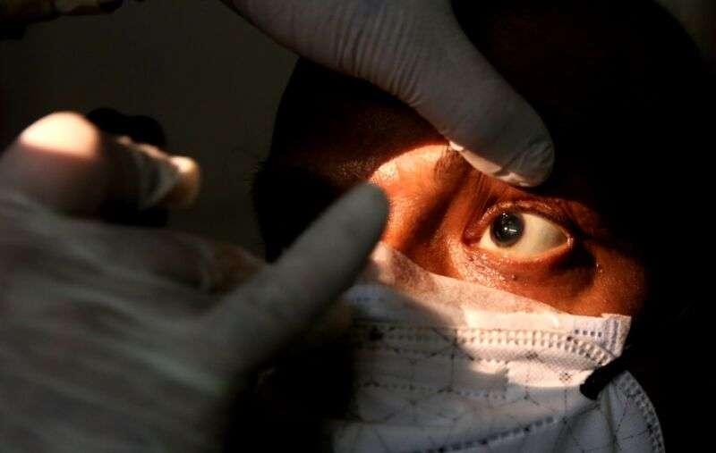 Спалах мукоміркозу в Індії – чорний грибок, який забирає зір і життя