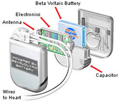 Схема будови кардіостимулятора з бета-вольтаїчною батарейкою всередині. Джерело: AltEnergyMag
